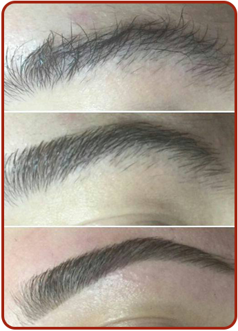 Before and After Threading